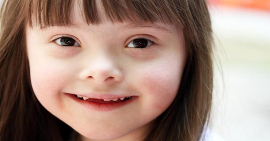 VIDEO: Povodom dana downovog sindroma: Normalno je biti drukčiji
